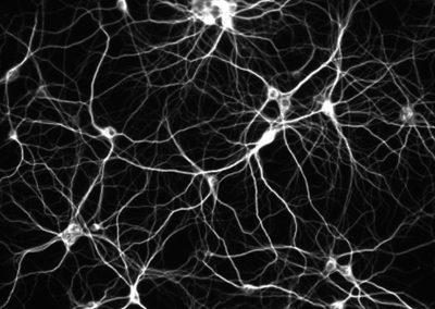 neuronas1.jpg
