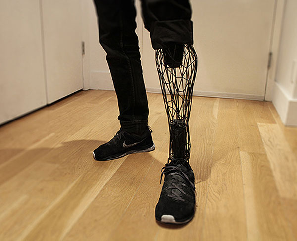 Exo Prosthetic Leg, la prótesis impresa en 3D de William Root