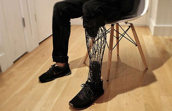 2.Exo Prosthetic Leg, la prótesis impresa en 3D de William Root