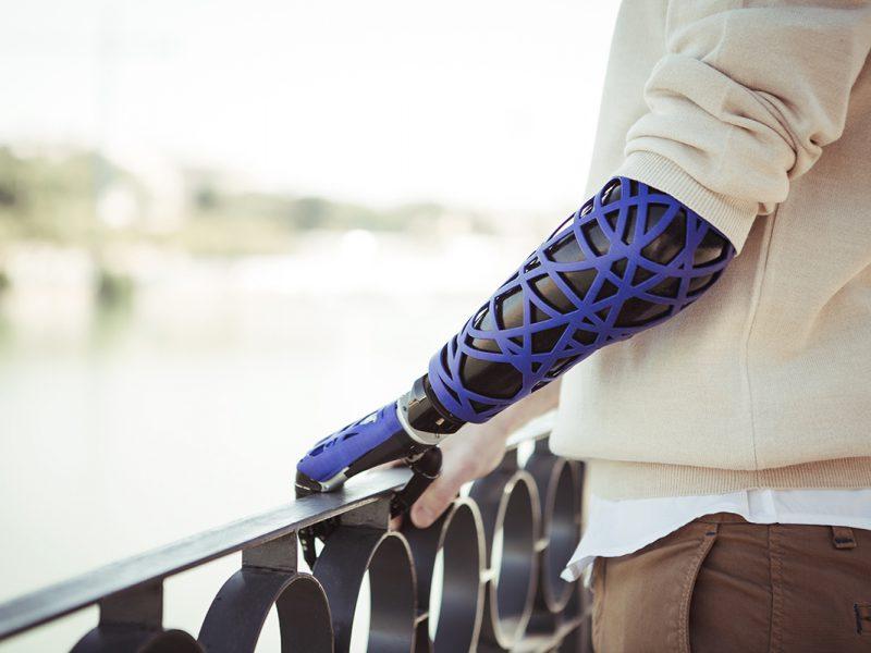 UNYQ y la personalización de las prótesis